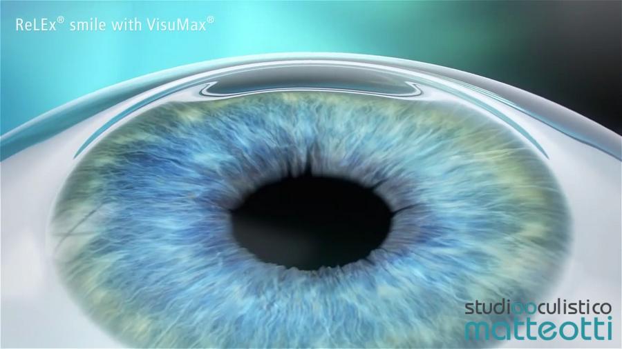Tecnica ReLEx Smile eseguitacon il laser VisuMax