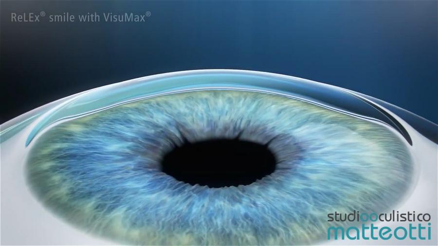 Tecnica ReLEx Smile eseguita con il laser VisuMax
