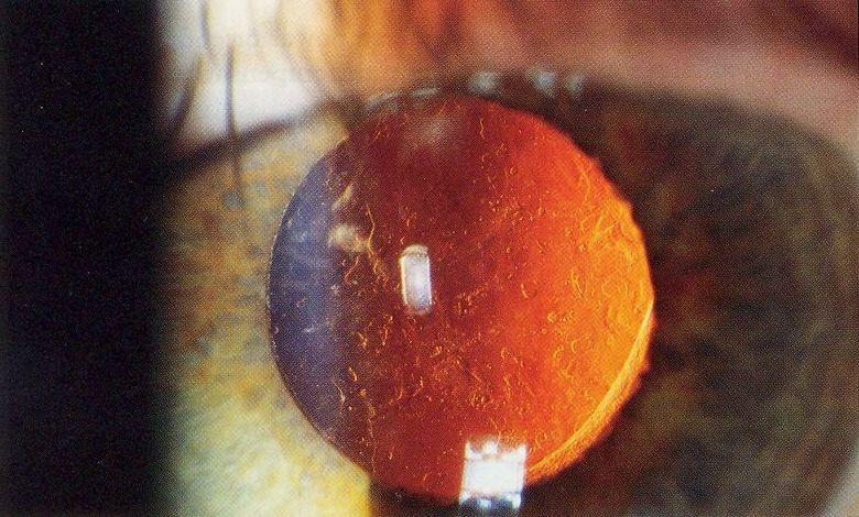 Capsulotomia Yag Laser Studio Oculistico Matteotti