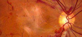Chirurgia retinopatia diabetica