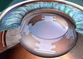 Advanced Technology Intra Ocular Lens