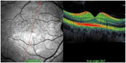 tomografia ottica computerizzata