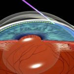 Trattamento ALT per glaucoma